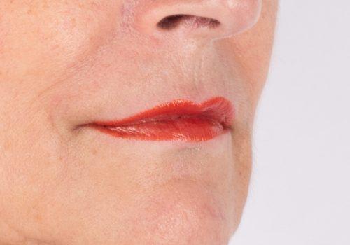 Marlies lippen opvullen na