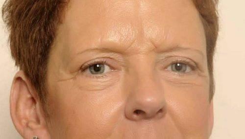 behandelingen - ooglidcorrectie - Onderooglidcorrectie kliniek na