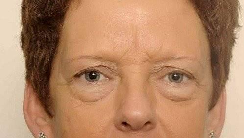 behandelingen - ooglidcorrectie - Onderooglidcorrectie kliniek voor