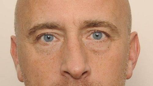 behandelingen - ooglidcorrectie - Onderooglidcorrectie man Breda na