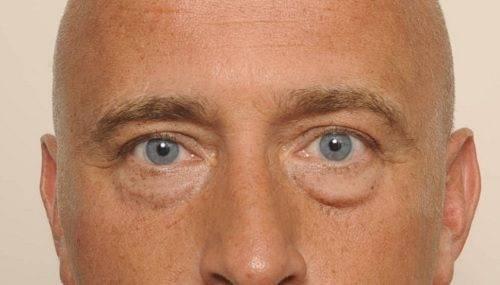 behandelingen - ooglidcorrectie - Onderooglidcorrectie man Breda voor