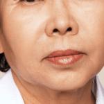 Behandelingen - injectables - Rokerslijntjes opvullen na