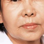 Behandelingen - injectables - Rokerslijntjes opvullen voor