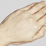 Behandelingen - huidverbetering - Skinboosters handen na