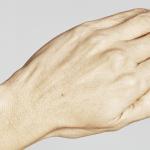 behandelingen - huidverbetering - Skinboosters handen voor