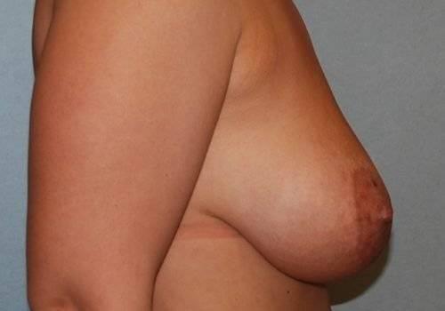 behandelingen - borstcorrectie - Slappe borsten behandeling voor