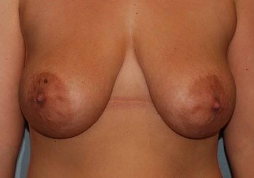 Behandelingen - borstcorrectie - Slappe borsten voor