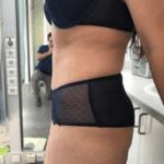 Behandelingen - plastische chirurgie - Slappe buik behandelen na