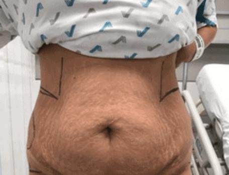 behandelingen - plastische chirurgie - Slappe buik corrigeren voor