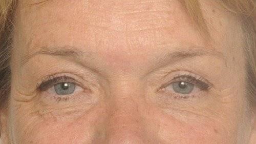 behandelingen - injectables - Vermoeid gezicht Breda na