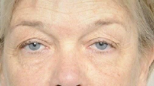Behandelingen - injectables - Vermoeid gezicht Breda voor