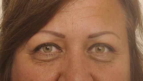 Behandelingen - ooglidcorrectie - Vermoeide ogen behandelen Breda na