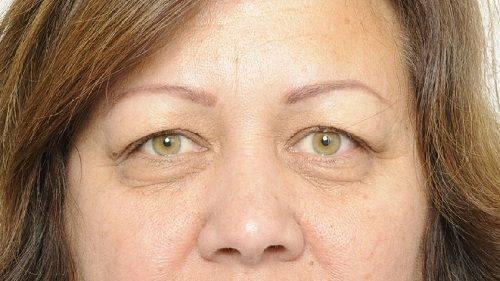 Behandelingen - ooglidcorrectie - Vermoeide ogen behandelen Breda voor
