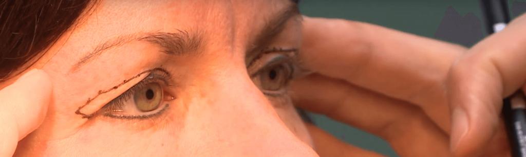 behandelingen - ooglidcorrectie - bovenooglidcorrectie - hangende oogleden