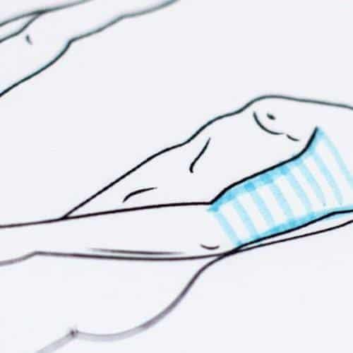 behandelingen - plastische chirurgie - Armlift