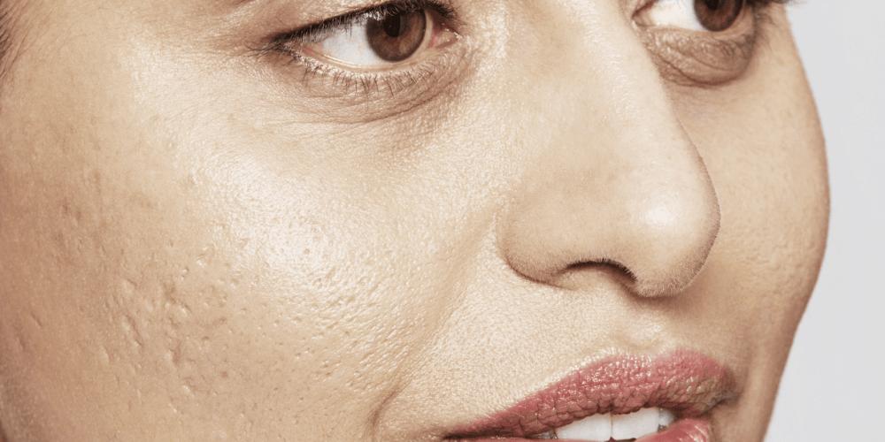 blog - acne-littekens