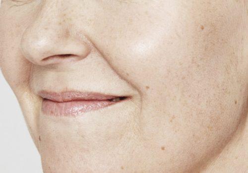 fillers lippen voor