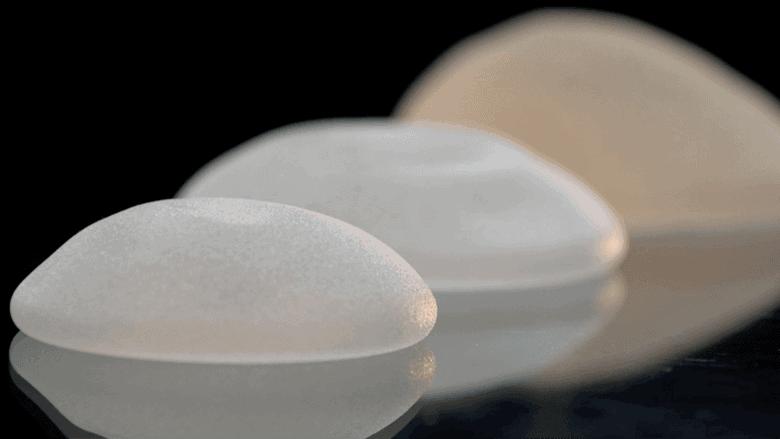 nieuws - getextureerde borstimplantaten