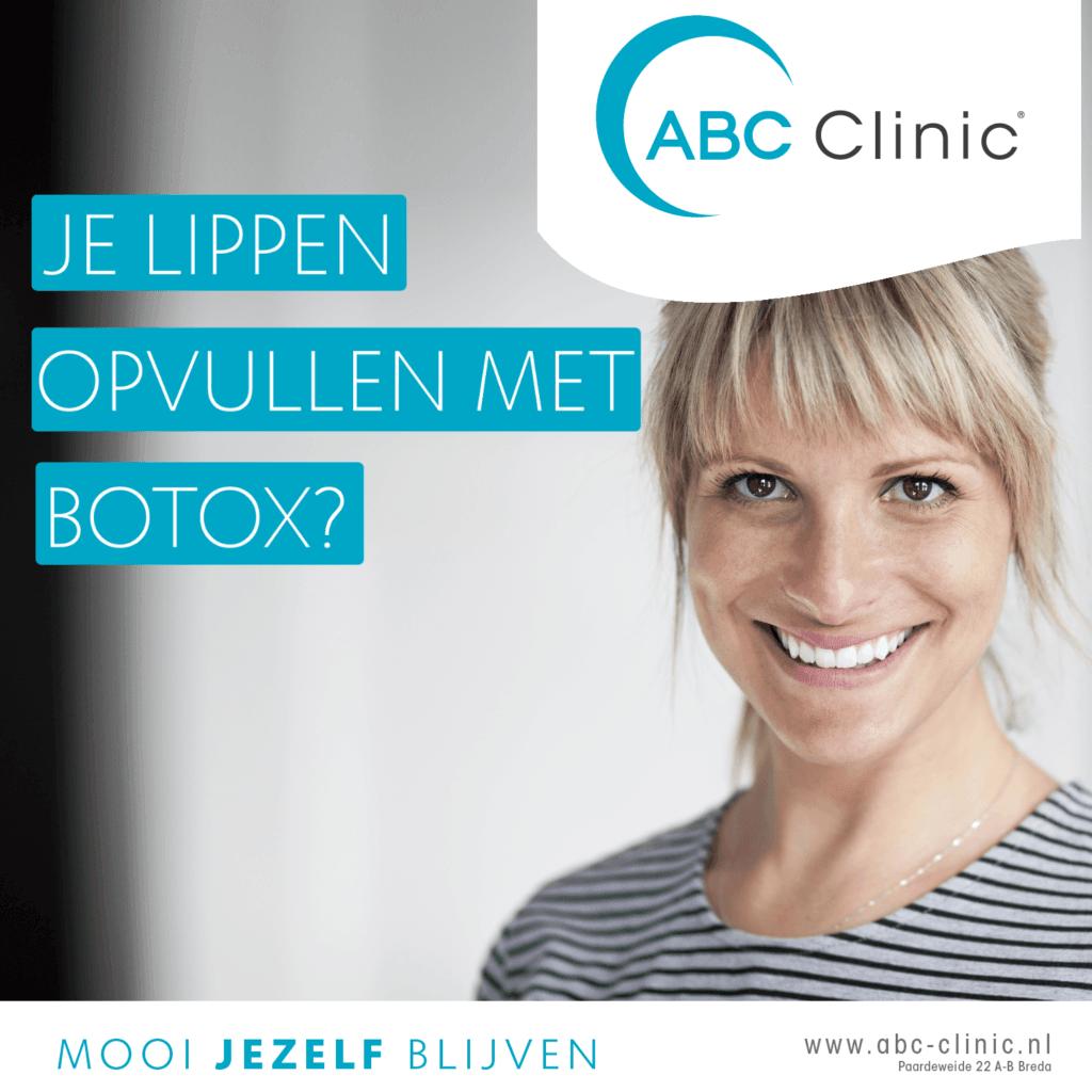 blog - Lippen opvullen met Botox