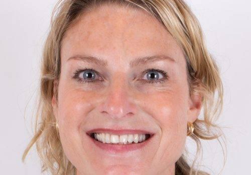Resultaat Botox-behandeling Inge na profielfoto