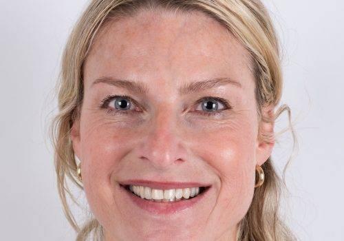 Botox-behandeling Inge voor profielfoto