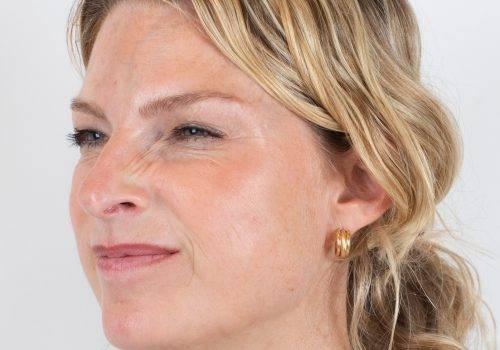 Resultaat Botox-behandeling bunny lines-neusrimpels met Azzalure bij Inge