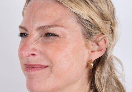 Botox-behandeling bunny lines-neusrimpels met Azzalure bij Inge