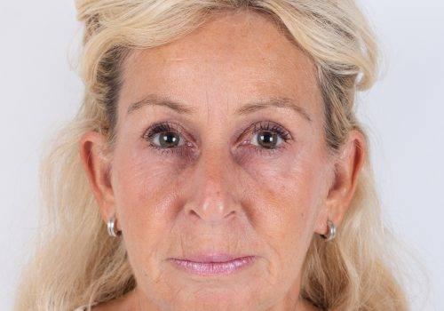 Resultaat Botox-behandeling fronsrimpel Patricia