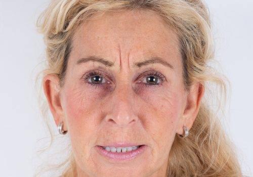 Botoxbehandeling fronsrimpel Patricia