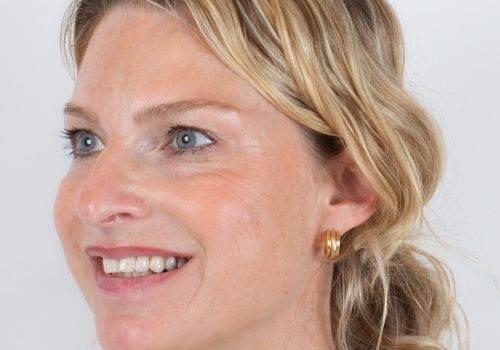 Resultaat Botox-behandeling kraaienpootjes bij Inge met Azzalure