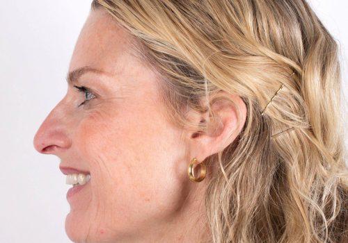 Behandeling kraaienpootjes met Botox Inge voor