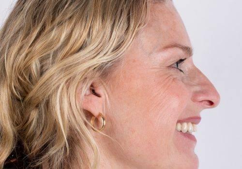Botox-behandeling kraaienpootjes Inge voor