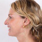 Behandeling kraaienpootjes met Botox Inge na