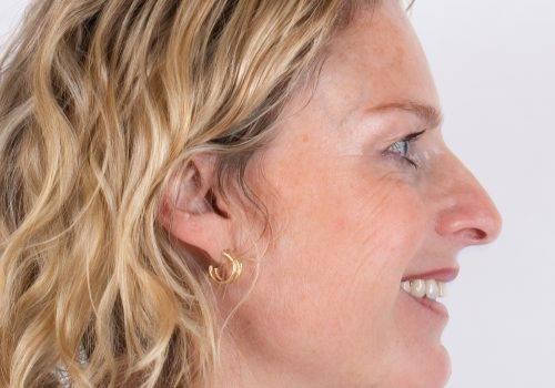 Botox-behandeling kraaienpootjes Inge na