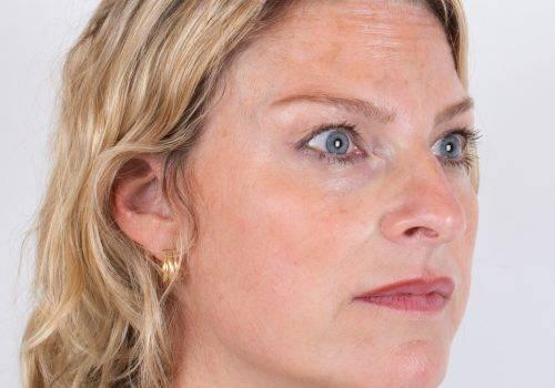 Botox-behandeling voorhoofdsrimpels Inge na