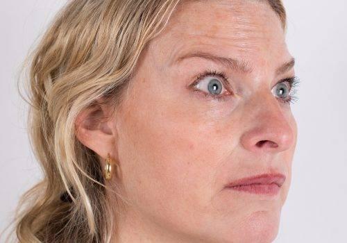 Botox-behandeling voorhoofdsrimpels Inge voor