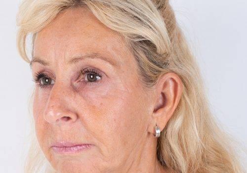 Resultaat behandeling fronsrimpel met de Botuline toxine Azzalure Patricia