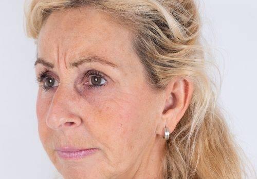 Behandeling Botuline toxine Patricia fronsrimpel