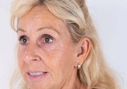 Resultaat van een Botox-behandeling voorhoofdsrimpels Patricia