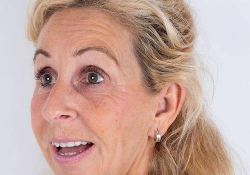 Behandeling van de voorhoofdsrimpels Patricia met Botox