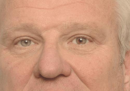 Hangende oogleden verdwijnen met een ooglidcorrectie
