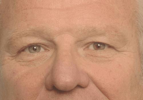 Hangende oogleden voor