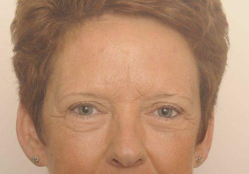 Wallen onder de ogen behandelen met een ooglidcorrectie