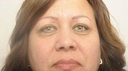 Bovenooglidcorrectie Sandra na