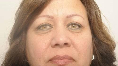 Hangende oogleden Sandra na
