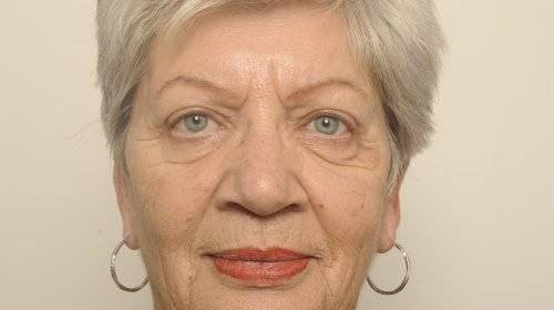 Hangende oogleden behandeling Corry na