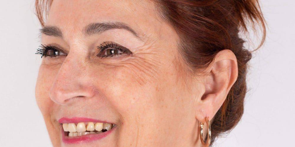 Marlies voor haar injectable-behandeling