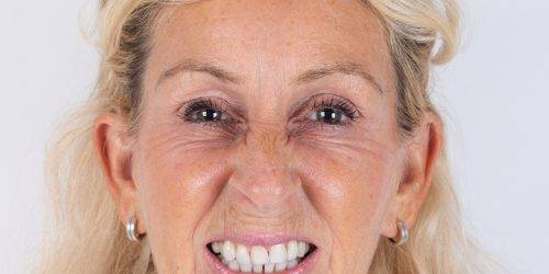 Patricia na haar injectable-behandeling