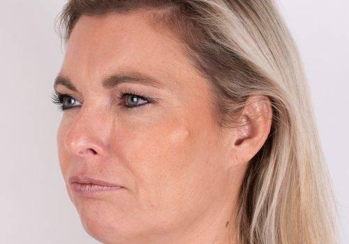 Botox Breda fronsrimpel na