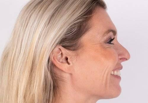 Botox Breda resultaat